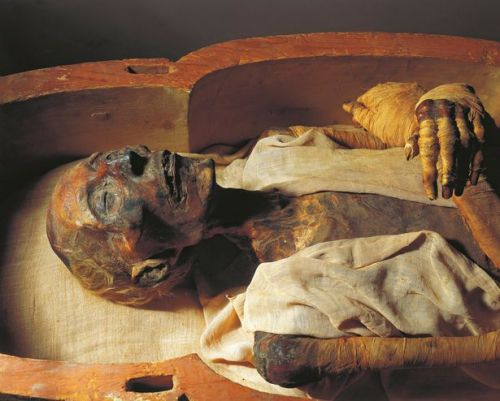 Mummy-of-Ramses-II-about-1297-1213-bC-detail